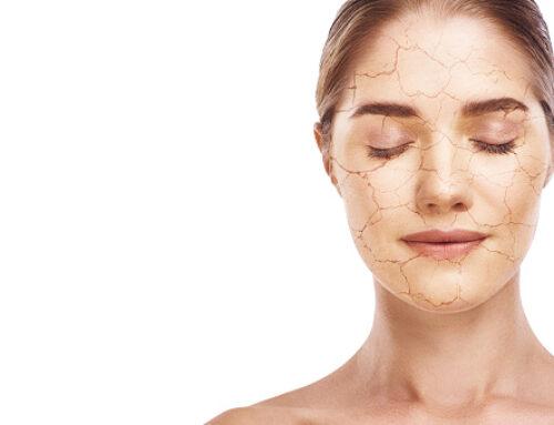 Vous avez la peau déshydratée ?